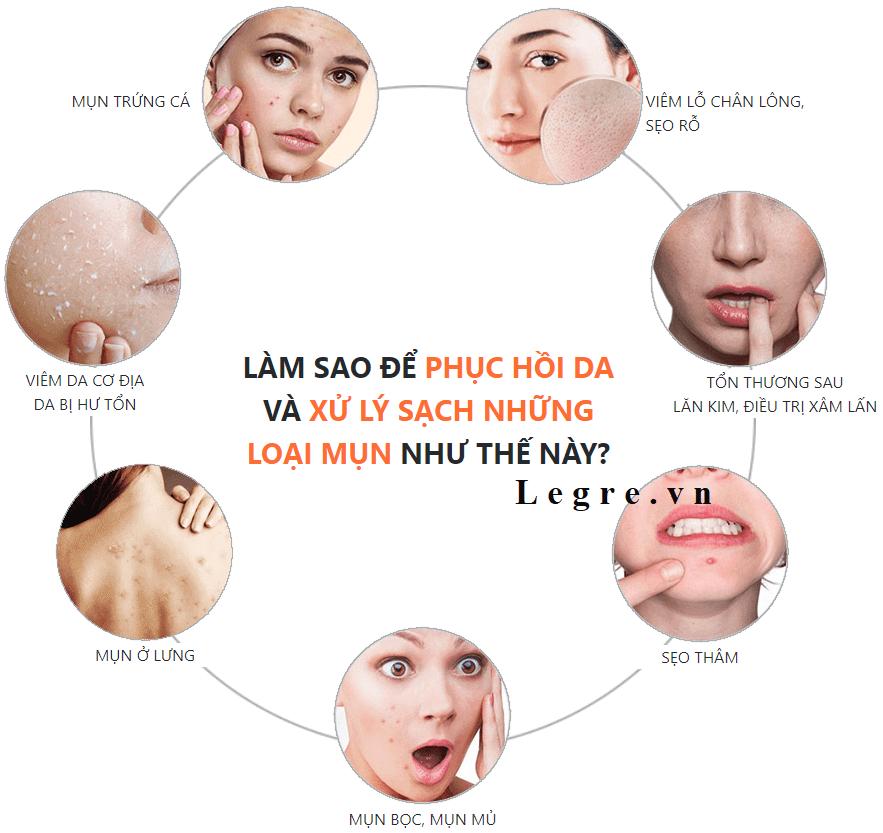 Làm sao để phục hồi da và xử lý những loại mụn này?