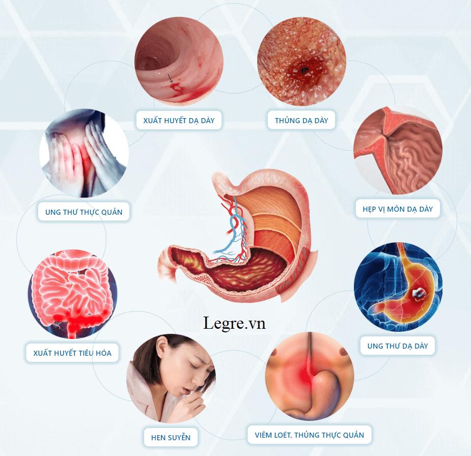 Những biến chứng nguy hiểm của bệnh dạ dày - Stomax Active